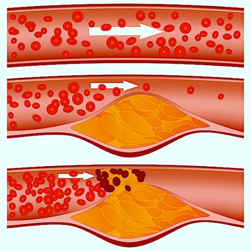 ¿Qué es el colesterol y qué tiene que ver con la salud del corazón?
