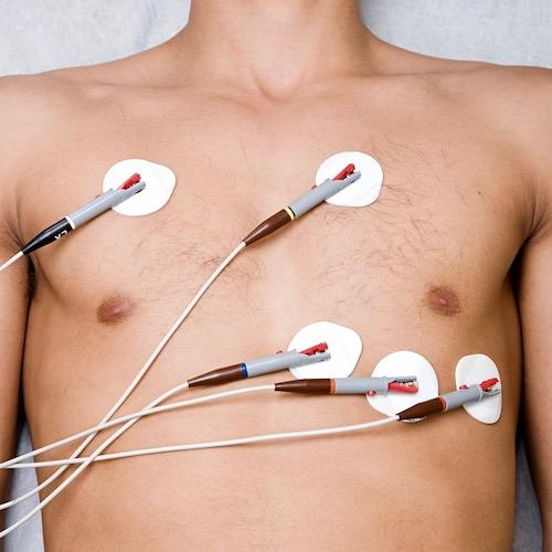 El electrocardiograma, gracias de todo corazón