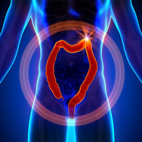 Detección temprana del cáncer de colon