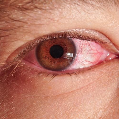 Hinchados ¿las llorar alergias por causan ojos