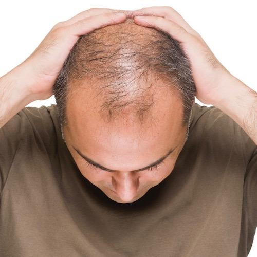 ¿Te estás quedando calvo? La calvicie puede ser un signo de otros problemas de salud