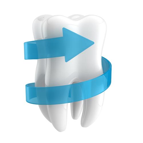 Evita las caries con los selladores dentales