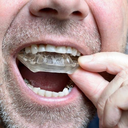 ¿Qué es el bruxismo? Cuando aprietas los dientes sin necesidad