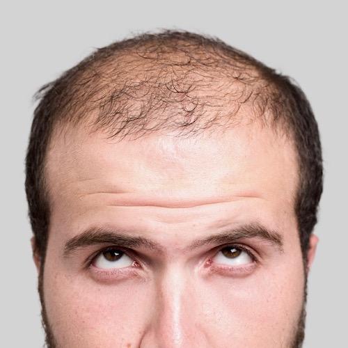 La verdad sobre los productos y procedimientos para la caída del cabello