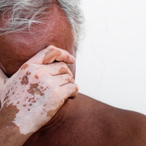 El Vitiligo – cuando la piel pierde su color