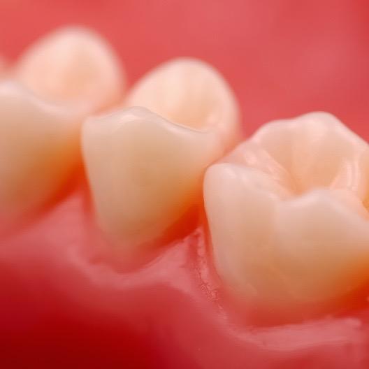 La salud de las encías y el Alzheimer – ¿Cuál es la conexión?