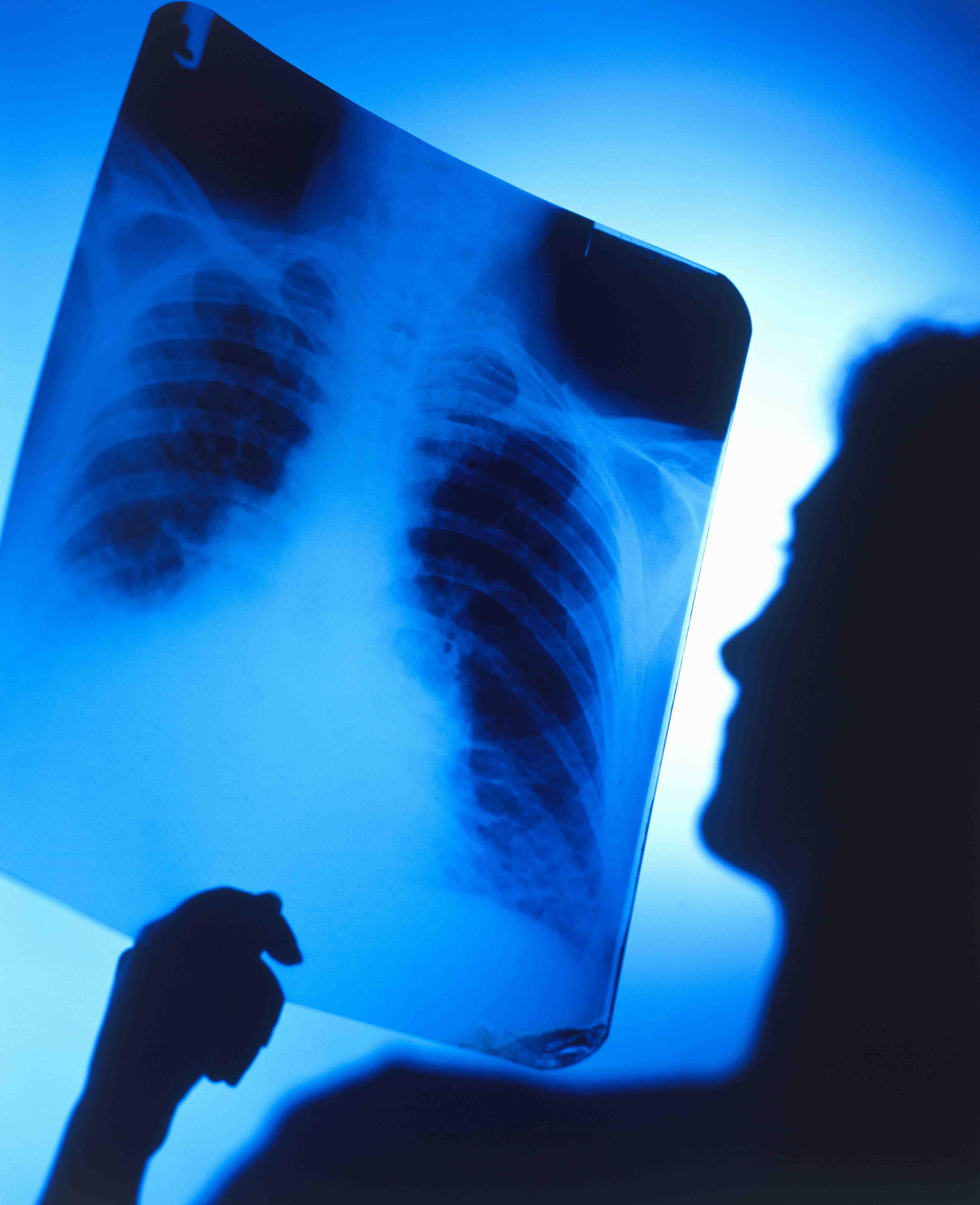 Fumar: la causa # 1 de cáncer del pulmón